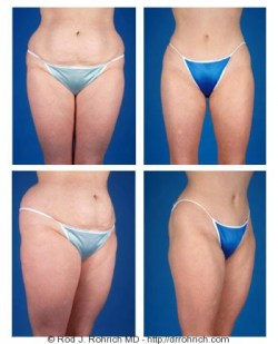 Tummy Tuck, Liposuction