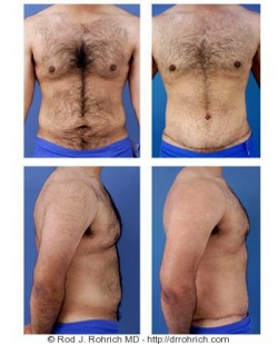 Male Abdominoplasty