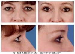 Upper and Lower Eyelid Surgery, Endoscopic Browlift