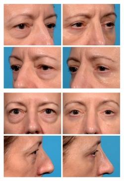 Upper and Lower Eye Lift with Fat Augmentation
