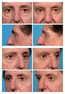Male Eye Lift with Fat Augmentation