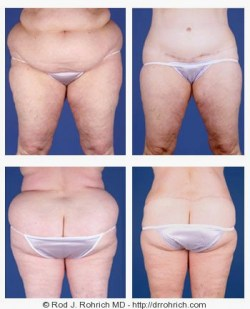 Central Body and Thigh Lift, Liposuction