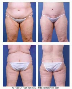 Central Body Lift, Liposuction