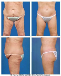 Central Body and Thigh Lift