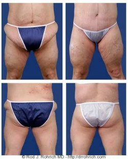 Central Body Lift, Panniculectomy, Liposuction