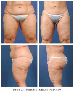 Central Body Lift, Thighplasty, Liposuction