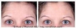 Botox: Brow and Eyes