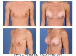 Breast Augmentation: Areola Incision