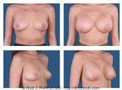 Breast Augmentation: Breast Fold Incision
