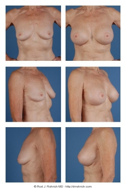 Breast Augmentation: Gel Implant