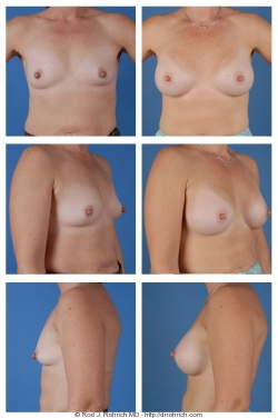 Breast Augmentation: