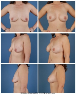 Breast Augmentation: Breast Fold