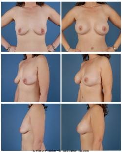 Breast Augmentation: Breast Fold