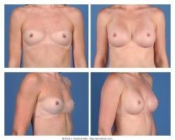 Breast Augmentation: Saline, Smooth, Round