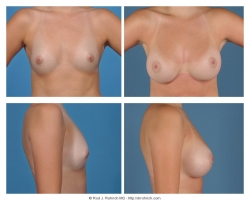 Breast Augmentation: Saline, Smooth, Round