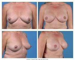 Breast Augmentation: Silicone Gel, Smooth, Round