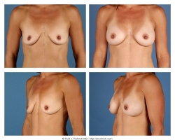 Breast Augmentation: Silicone Gel, Smooth, Round