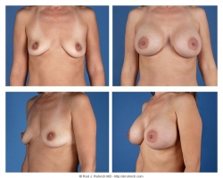 Breast Augmentation: Saline