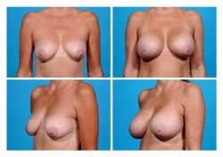 Breast Augmentation: Silicone Gel
