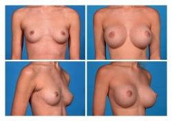 Breast Augmentation: Silicone Gel