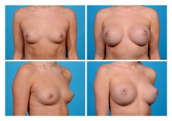 Breast Augmentation: Saline
