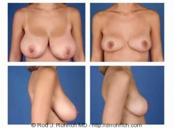 Breast Reduction: DD Cup to C Cup