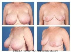 Breast Reduction: DDD Cup to C Cup