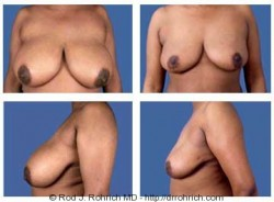 Breast Reduction: E Cup to C Cup