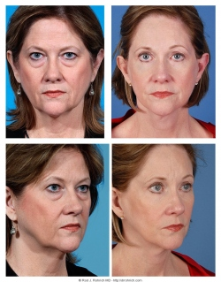 Facelift, Upper and Lower Eyelids, Chemical Peel