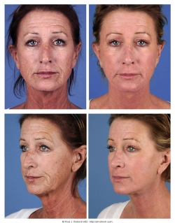 Facelift, Brow Lift, Upper and Lower Eyelids, Fat Injections, Laser Resurfacing