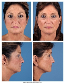 Facelift, Upper and Lower Eyelids, Laser Resurfacing, Fat Injections