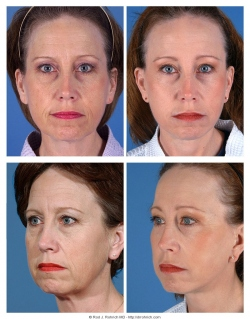 Facelift, Upper and Lower Eyelids, Fat Injections