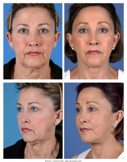 Facelift, Brow lift, Upper and Lower Eyelids, Fat Injections
