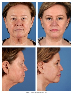 Facelift, Fat Injections