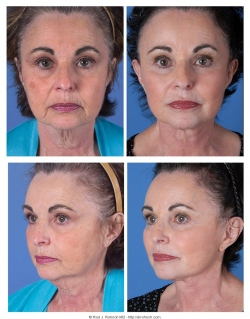 Facelift, Brow Lift, Upper and Lower Eyelids, Chemical Peel, Fat Injections