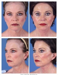 Facelift, Upper and Lower Eyelids, Chemical Peel, Fat Injections