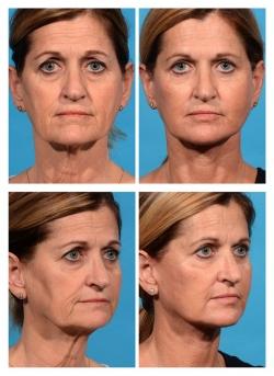 Facelift, Necklift, Fat Augmentation, Blepharoplasty