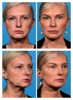 Facelift, Brow lift, Necklift, Fat Augmentation, Blepharoplasty