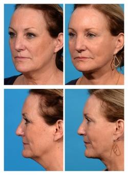 Facelift, Necklift, Fat Augmentation, Blepharoplasty, Chemical Peel
