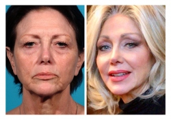Facelift Example, Facial Rejuvenation 10 Years