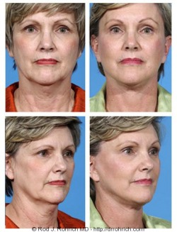 Facelift, Brow Lift, Neck Lift, Upper and Lower Eyelids, Filler