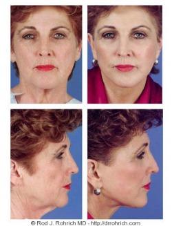Facelift, Brow Lift, Upper Eyelids, Laser Resurfacing