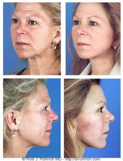Facelift, Brow Lift, Upper and Lower Eyelids, Chemical Peel