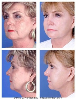 Facelift, Upper Eyelids, Laser Resurfacing
