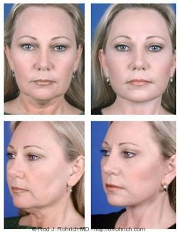 Facelift, Upper Eyelids