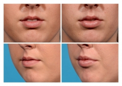 Lip Augmentation: Juvederm