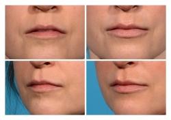 Lip Augmentation: Juvederm