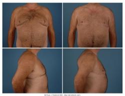 Gynecomastia Excisional MWL