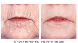 Laser Resurfacing, Face Lift