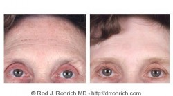 Laser Resurfacing, Upper Blepharoplasty